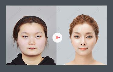 整形 鼻 韓国 韓国で鼻整形におすすめの美容外科をご紹介!値段の相場はいくら?