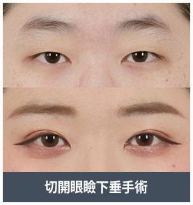 目頭 切開 韓国 目頭・目尻切開 – 韓国ST美容整形外科