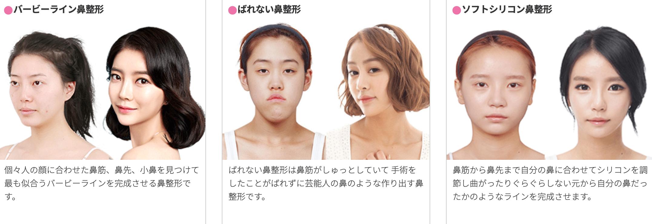 整形 鼻 韓国 ノープラント 無プロテーゼ鼻整形